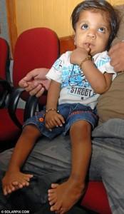 ребенок, родившийся с 34 пальцами
