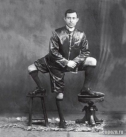 Фрэнк Лентини — человек с тремя ногами