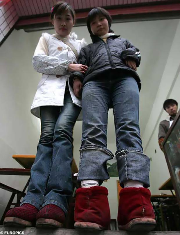 девушка с повернутыми ногами