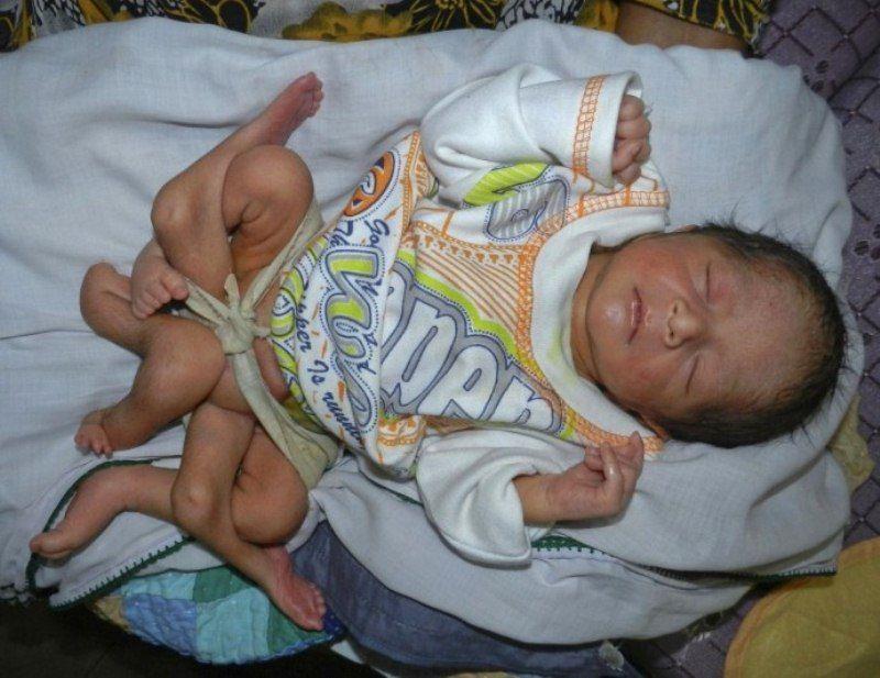 В Пакистане родился ребенок с шестью ногами